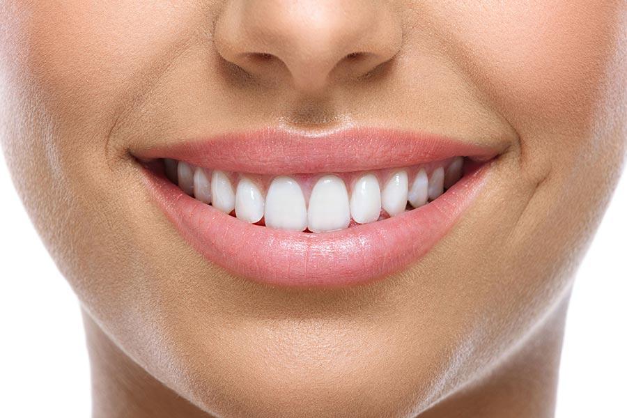 7 طرق لتجميل الأسنان الأمامية