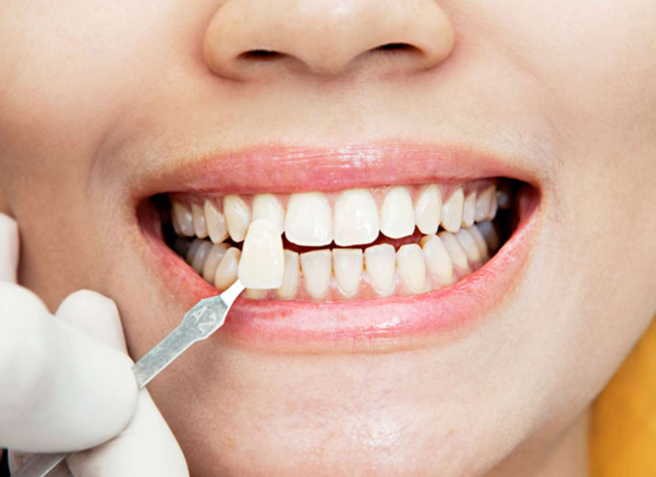 طرق تجميل الاسنان الامامية