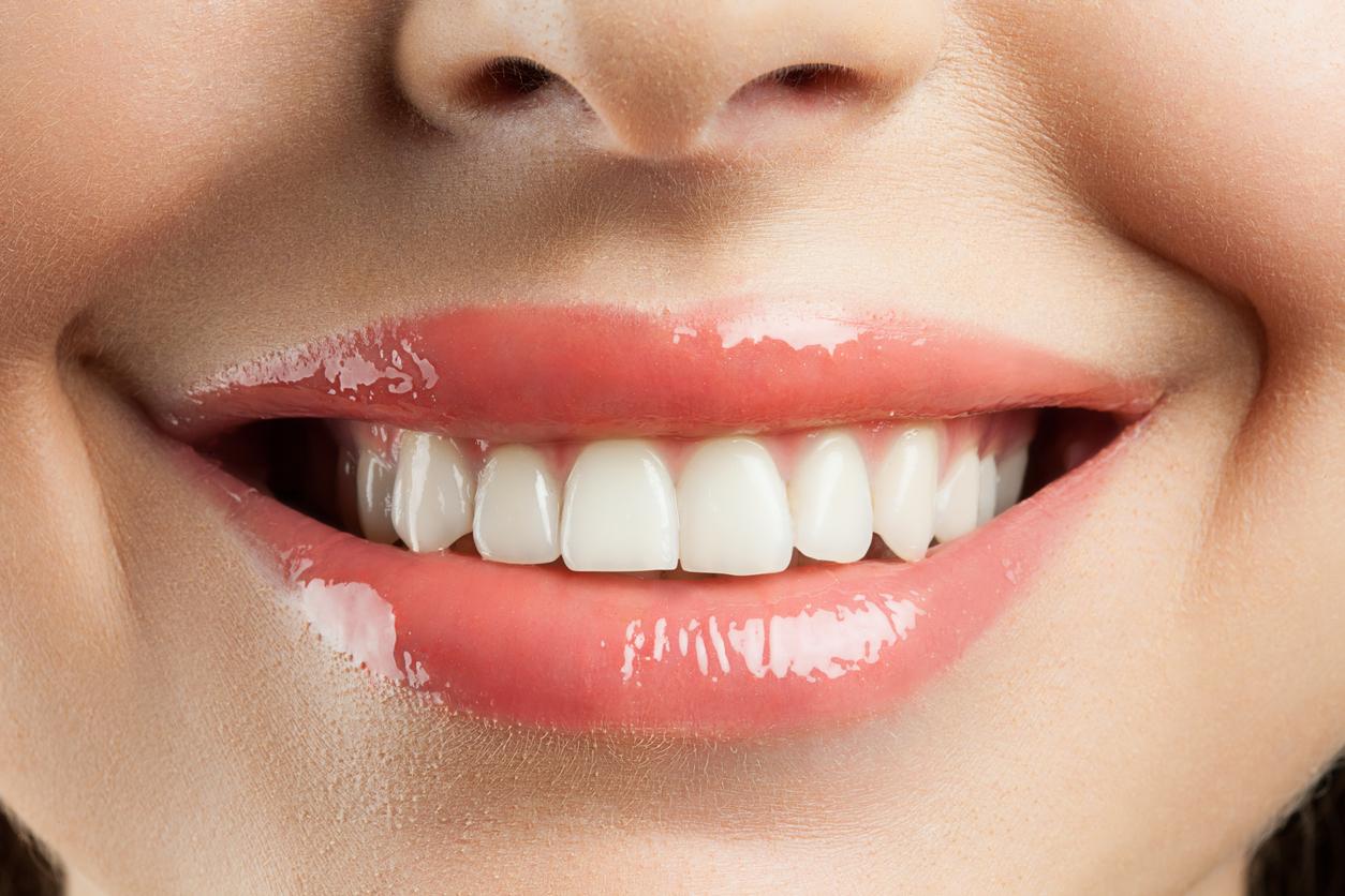 عملية تجميل الأسنان