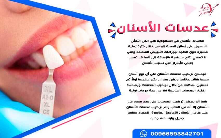 سعر عدسات الأسنان في السعودية