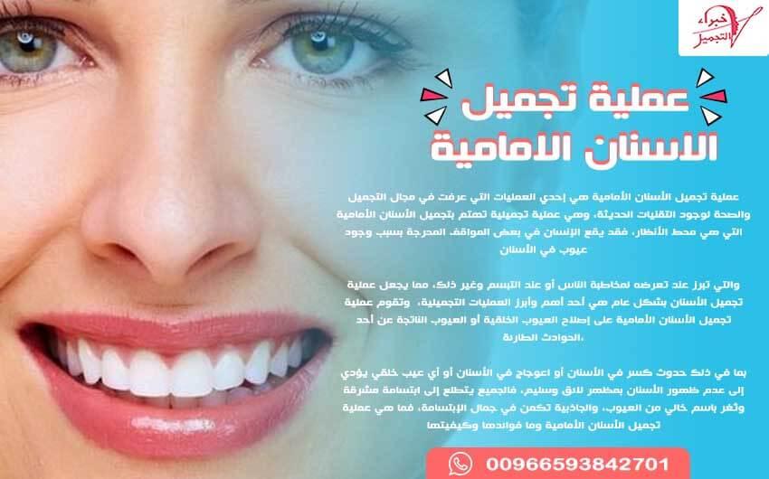 دليل عملية تجميل الاسنان الامامية