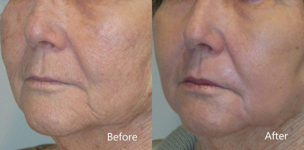 متى تظهر نتائج الفراكشنال ليزر وشكل الوجه بعد الفراكشنال ليزر