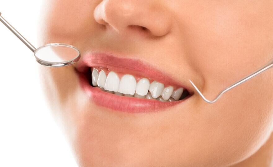 علاج اصفرار الأسنان بعد التبييض