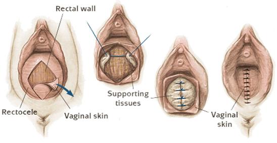 عمليات تجميل العضو الأنثوي
